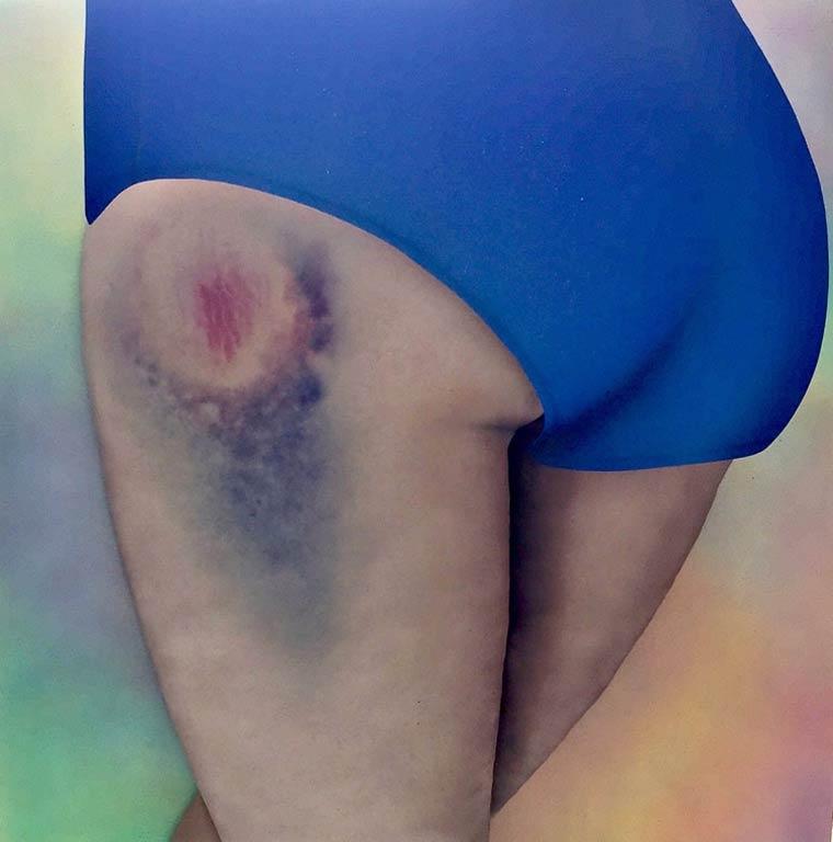 Riikka-Hyvonen_bruises 5