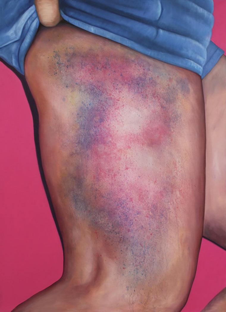 Riikka Hyvönen_bruises 6