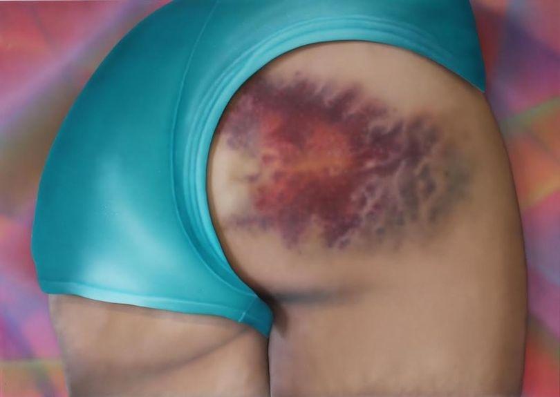 Riikka Hyvönen_bruises1